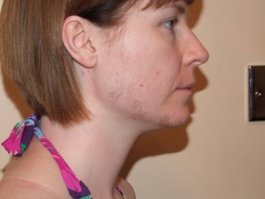 SIDE FACE DAY 13