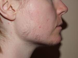 SIDE FACE DAY 14