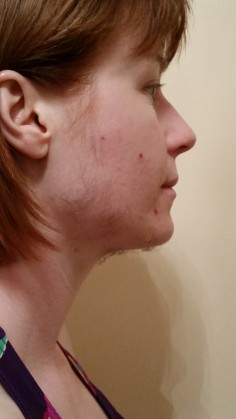 SIDE FACE DAY 31
