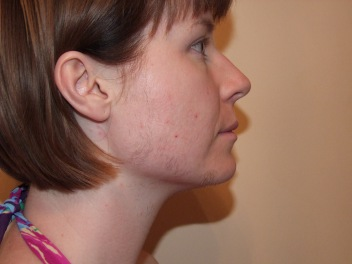 SIDE FACE DAY 9